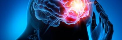Epilepsy-Center2
